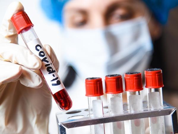 Коронавирус обнаружен еще у 17 жителей Волгодонска
